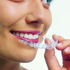 Getting your facts – and your teeth – straight with Invisalign and Invisalign Teen