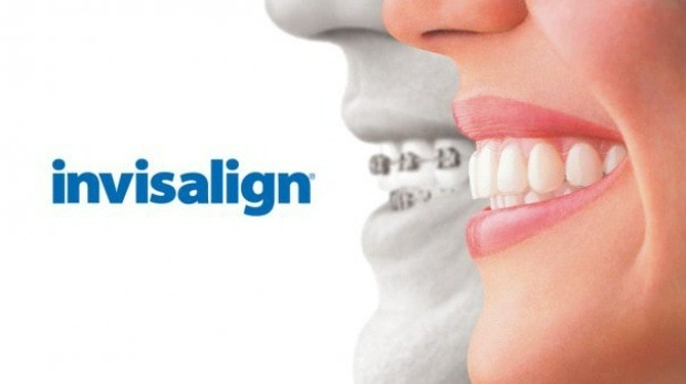 My two months with Invisalign orthodontics